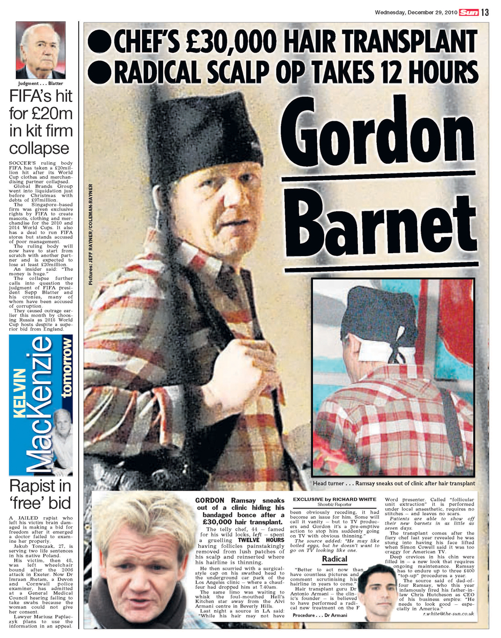 gordon ramsay spotted after undergoing hair transplant coleman rayner